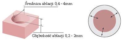 acublade_circular